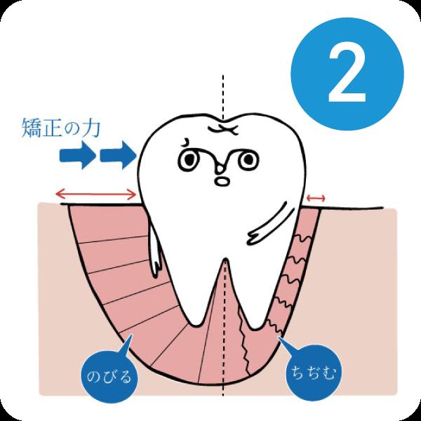 マウスピースによる歯列矯正2