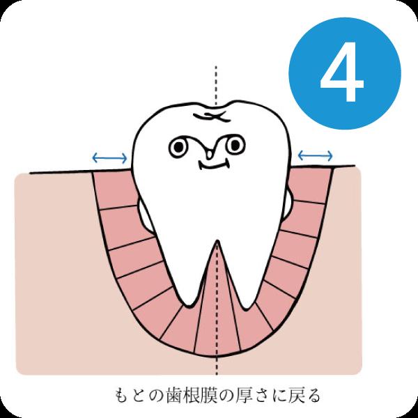マウスピースによる歯列矯正4